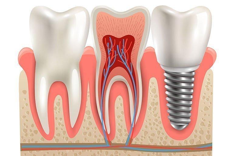 En Doğal İmplant Kendi Diş Kökleriniz